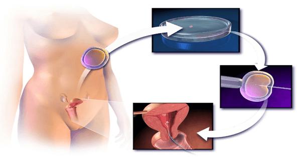 أعراض وعلامات نجاح الحقن المجهري قبل التحليل