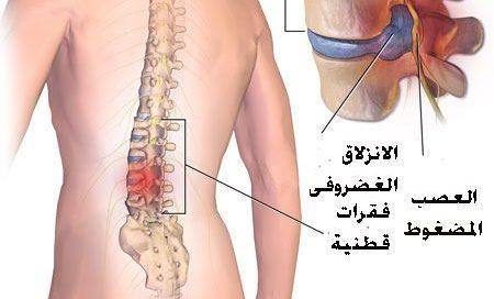 مكان الغضروف في جسم الإنسان