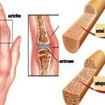 Diferenças entre artrite, artrose e osteoporose que vale a pena conhecer. Aprenda!