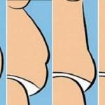 Veja o que indica seu tipo de barriga…
