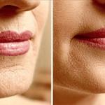5 receitas caseiras que eliminam os problemas mais comuns de pele