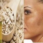 6 Dicas naturais para reduzir o melasma.