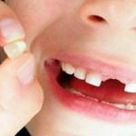 Guardar dente de leite é medida para armazenar células-tronco e usá-las no futuro