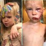 Menino de seis anos defende irmã mais nova do ataque de cão pastor alemão
