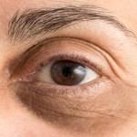 Redução das olheiras com truque caseiro