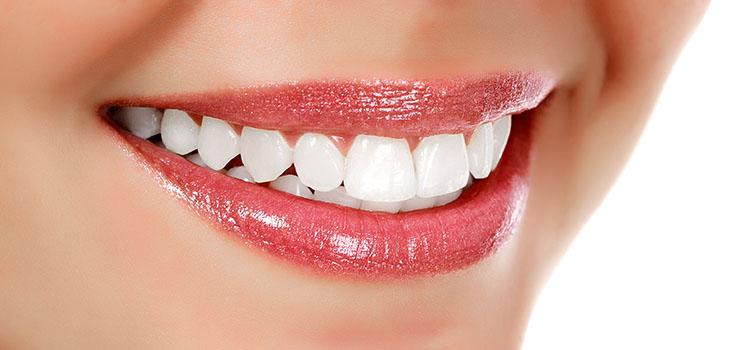 Stomatološka ordinacija Manić Beljenje zuba
