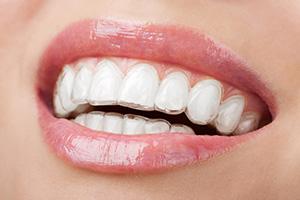 Folije za izbeljivanje zuba