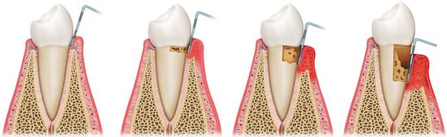 Ilustrovani prikaz napredovanja parodontopatije