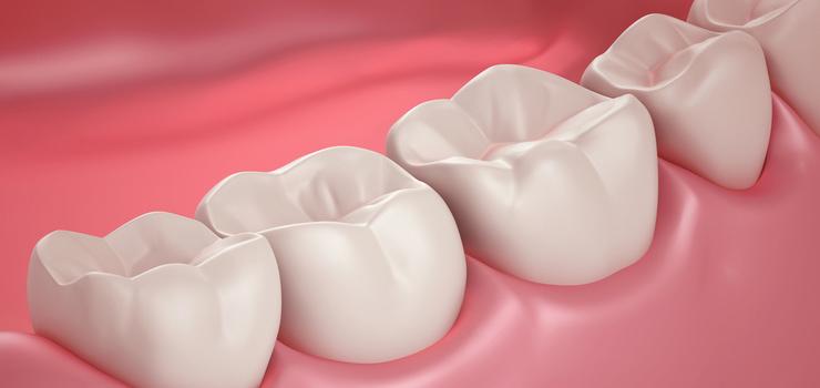 Stomatološka ordinacija Manić Parodontologija
