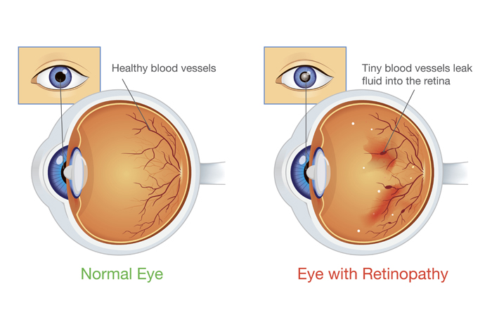 Anatomy of an eye with diabetic retinopathy