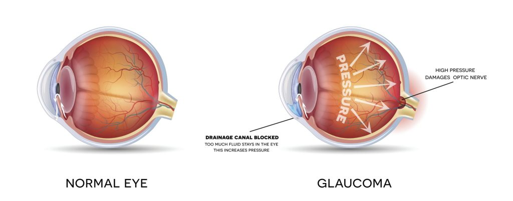 Anatomy of an eye with and without Glaucoma