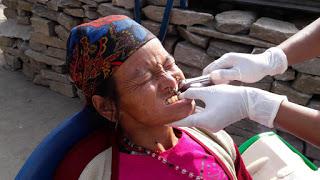 Fig 14: Teeth Extraction.