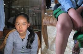 Manisha Tamang : problèmes rotuliens, jamais consulté