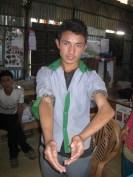 Sansar Tamang fracture du bras à l'âge de 8 ans,jamais consulté