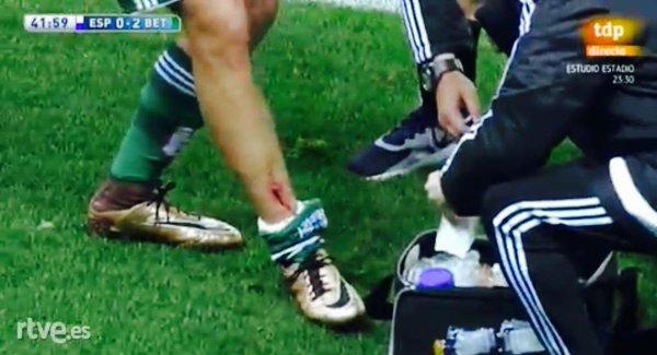 Violenta entrada de Caicedo sobre Dani Ceballos (Espanyol-Betis, 15-16)