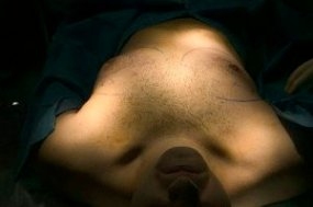 USA - Plastic Surgery - Matt Anderson - Gynecomastia