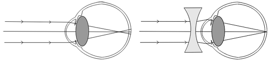 Miopía y su corrección con una lente divergente (Fuente: Wikipedia)
