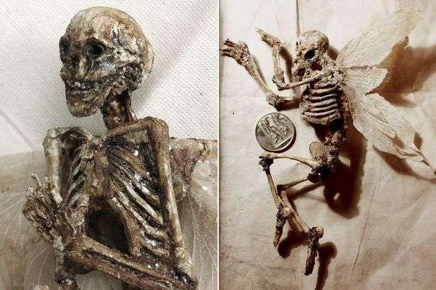skeletet