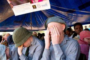 Albinos still being hunted in Malawi