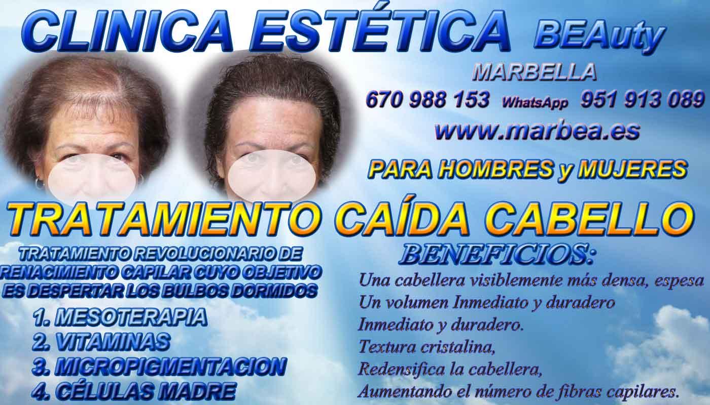 tratamientos caida del cabello Fuengirola Clínica Estética y tratamiento de la alopecia areata Fuengirola: Te proponemos la alta calidad de nuestroservicio