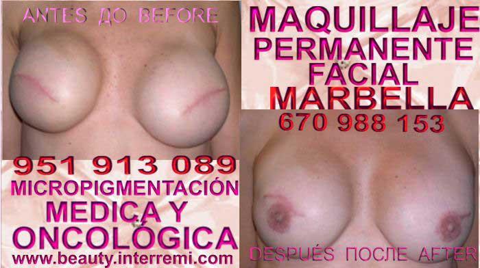 En la CLÍNICA DE MICROPIGMENTACIÓN MÉDICA Y MAQUILLAJE PERMANENTE OFRECE LOS MEJOR PRECIO PARA camuflaje cicatrices post reduccion pezón Marbella y Murcia