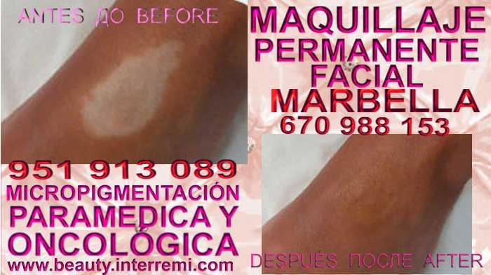 cura para vitiligo en la clínica estetica entrega  Micropigmentación Vitiligo Y Tratamiento Manchas De Vitiligo Tratamiento Para La Vitiligo Vitiligo