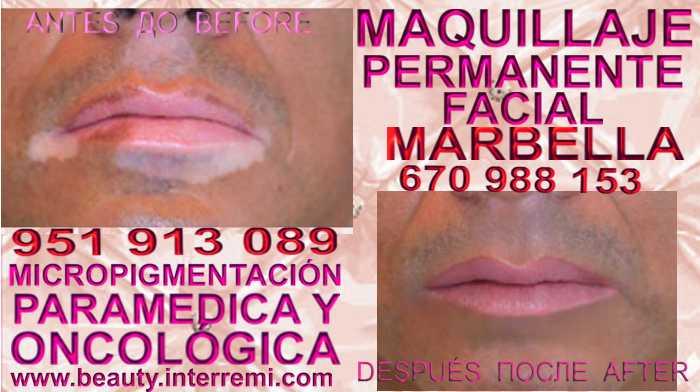 Tatuaje Vitiligo en la clínica estetica propone  Micropigmentación Vitiligo OR Vitiligo Maquillaje Permanente Vitiligo Tratamiento Vitiligo