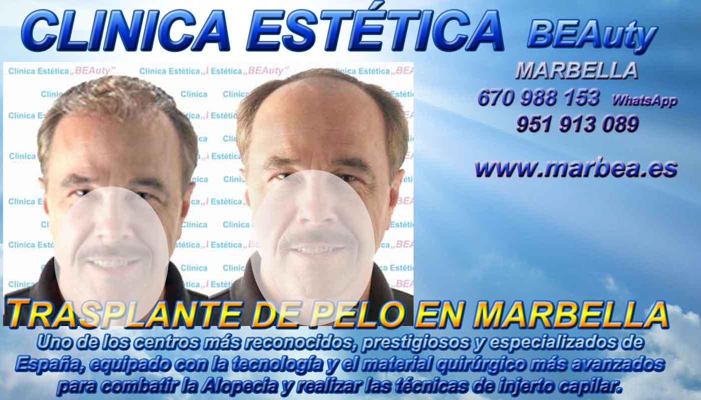 Injertos cabello Clínica Estética y Injertos Cabello Marbella y Málaga