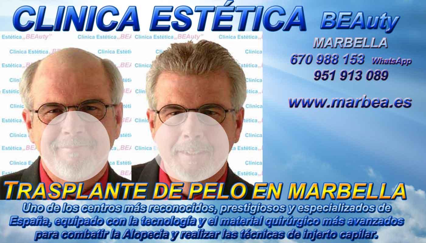 Trasplante pelo Clínica Estética y Injertos Cabello Marbella y en Málaga