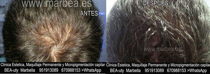 CICATRICES EN EL CUERO CABELLUDO TRATAMIENTO CLINICA ESTÉTICA micropigmentación capilar en Málaga y en Marbella y MAQUILLAJE PERMANENTE en MARBELLA