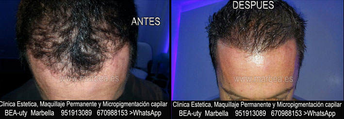 MICROPIGMENTACIÓN CAPILAR MARBELLA CLINICA ESTÉTICA tatuaje capilar en Málaga y en Marbella y MAQUILLAJE PERMANENTE en MARBELLA