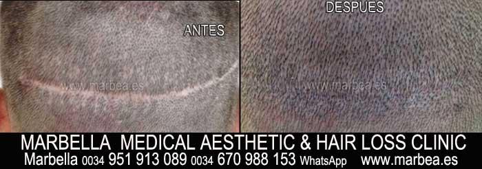 tratamientos caida del pelo Marbella Marbella Clínica Estética y Tratamientos alopecia Marbella: Te proponemos la mayor calidad de nuestroservicio