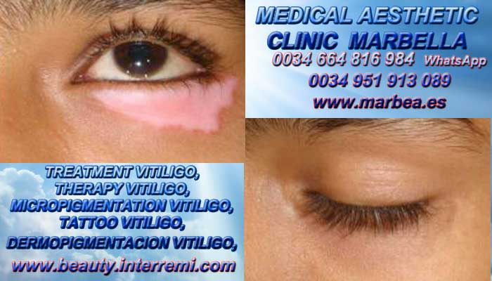 TREATMENT VITILIGO very welcome  the aesthetic medicine clinic in marbella