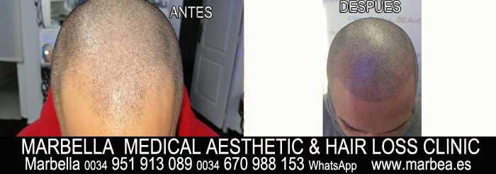 tratamiento caida del pelo mujer Marbella Marbella Clínica Estética y tratamientos alopecia areata en hombres Marbella: Te ofrecemos la mayor calidad de nuestroservicio
