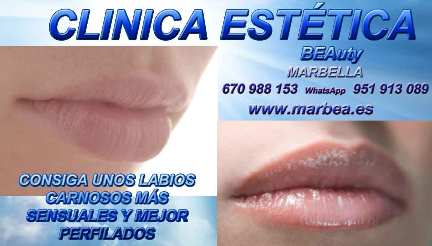 tratamiento para eliminar surcos nasogenianos aumento de labios Coín