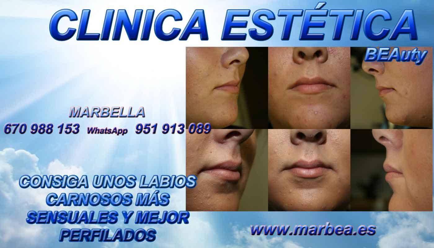 camuflaje para levantar parpados sin cirugia aumento de labios Motril
