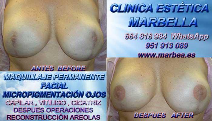CICATRICES EN AUMENTO PECHO Micropigmentación de la areola Camuflaje cicatrices después de reduccion de senos