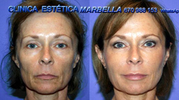 Eliminar lineas de expresiónen Marbella Reducir lineas de expresiónen Marbella