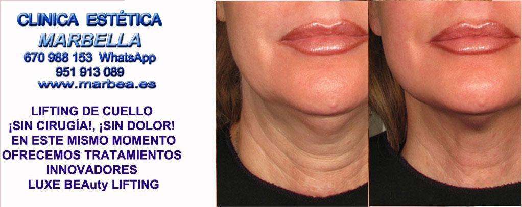 Lifting de cuello sin cirugía Cádiz  Rejuvenecer cuello y papada sin cirugia. Lifting de cuello sin cirugía, Lifting de papada sin cirugia. Marbella or Jaén