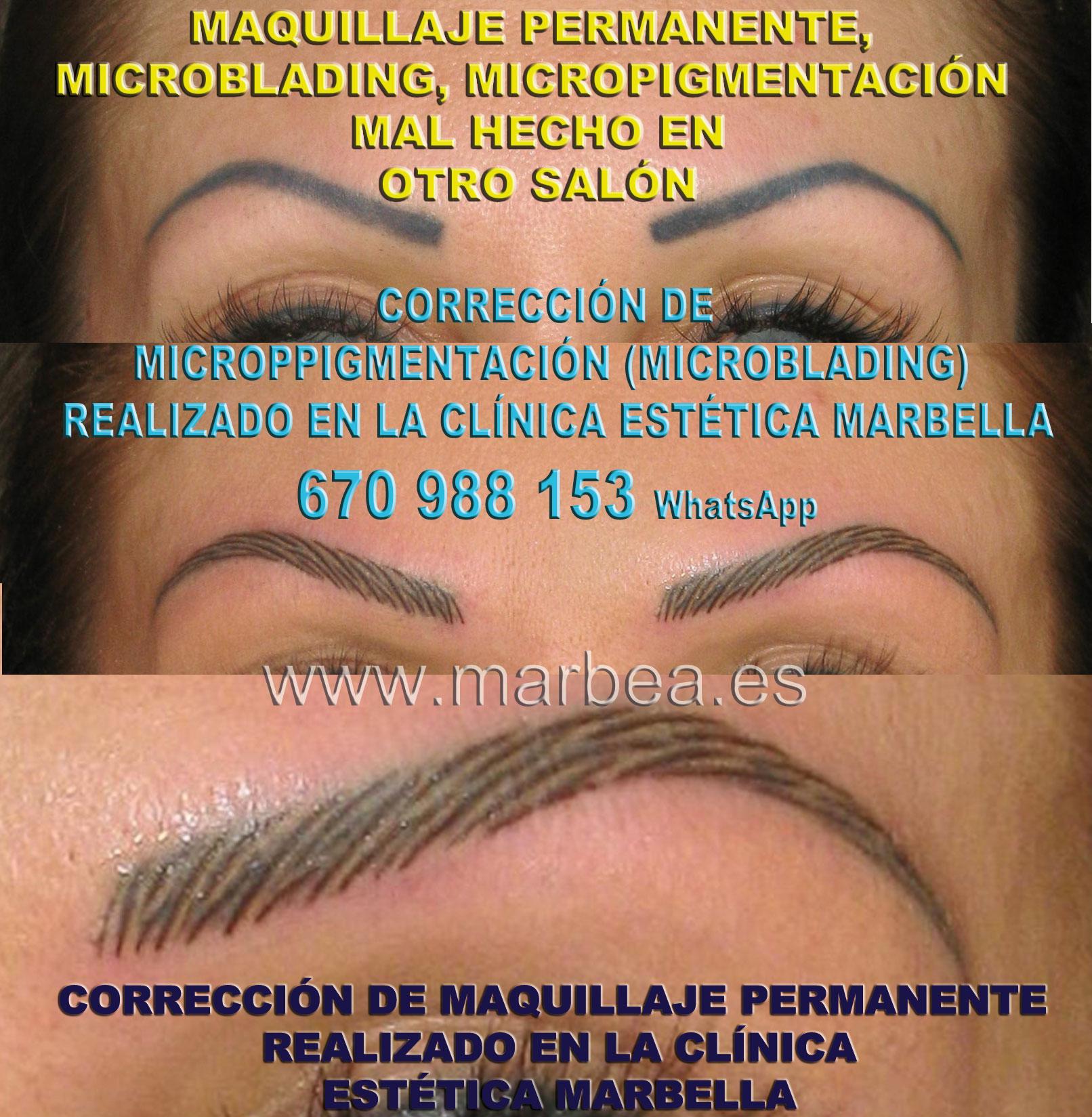 ELIMINAR LA MICROPIGMENTACIÓN DE CEJAS MAL HECHAS clínica estética maquillaje permanete ofrenda corrección de micropigmentación en cejas,corregir micropigmentación mal hecha en Marbella or Málaga.