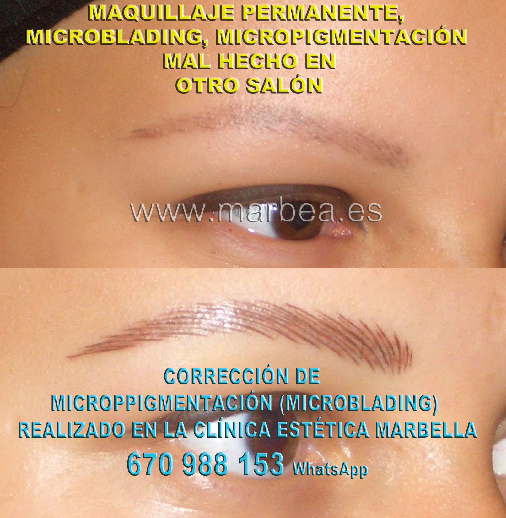MAQUILLAJE PERMANENTE CEJAS MAL HECHO clínica estética maquillaje semipermanente propone micropigmentacion correctiva de cejas,corregir micropigmentación no deseada