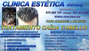 tratamiento caida del cabello mujeres Mijas Clínica Estética y tratamiento contra la alopecia con celulas madre Mijas: Te ofrecemos la mayor calidad de nuestroservicio