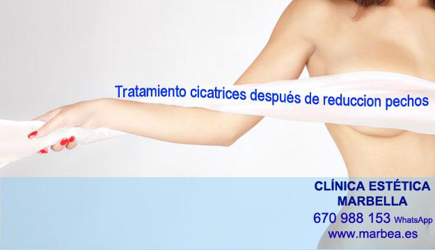 MICROPIGMENTACIÓN DE LA AREOLA clínica estética microblading ofrenda tratamiento cicatrices luego de reduccion de pezón