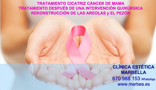 MICROPIGMENTACIÓN DE LA AREOLA clínica estética tatuaje entrega camuflaje cicatrices después de reduccion de mamaria