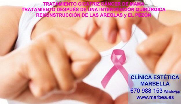 CICATRICES DESPUES DE AUMENTO DE SENOS clínica estética microblading ofrenda tratamiento cicatrices posteriormente de reduccion senos