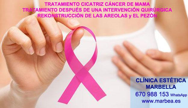 MICROPIGMENTACIÓN DE LA AREOLA clínica estética microblading ofrenda camuflaje cicatrices después de reduccion senos