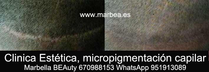 CAMUFLAJE DE LA CICATRIZ DEL TRASPLANTE DEL PELO CLINICA ESTÉTICA micropigmentación capilar en Marbella y maquillaje permanente en marbella