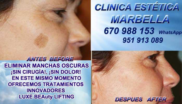 ELIMINAR MANCHAS OSCURAS MARBELLA Manchas pigmentarias, Tratamiento de manchas y lesiones pigmentadas en Tratamiento para manchas facialesen. Eliminar lesiones pigmentadas en, Quitar lesiones pigmentadas en en Marbella y MARBELLA