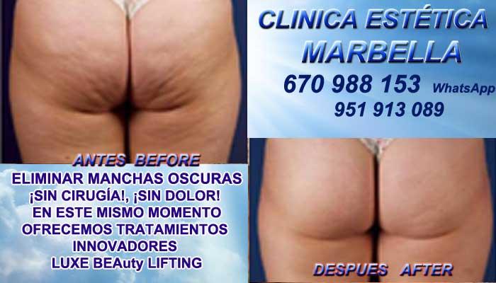 Tratamiento Para Celulitis MARBELLA :En la CLINICA ESTÉTICA MARBELLA te proponemos la mayor calidad de, nuestro servicio en Marbella y MARBELLA