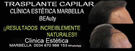 Trasplante de Pelo en Marbella trasplante de cabello Trasplante Marbella.